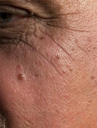 Anti-Aging for the Eyes procedures by Nathan E Nachlas MD