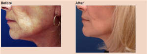 facelift-before-after-nachlas