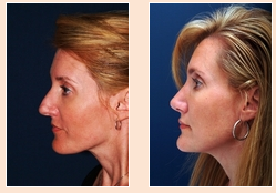 Rhinoplasty Blog | Rhinoplasty Before and After | Images of the Nose