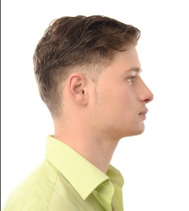 rhinoplasty-surgery-for-your-teen-boy-nose-side