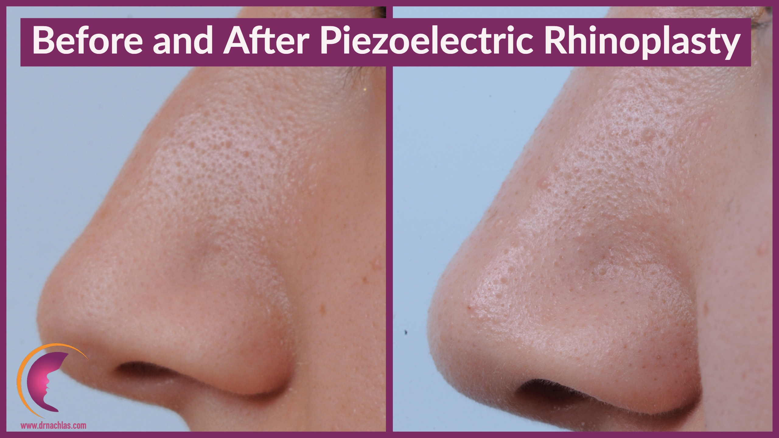patient images before and after piezoelectric rhinoplasty surgery by Dr. Nathan Nachlas