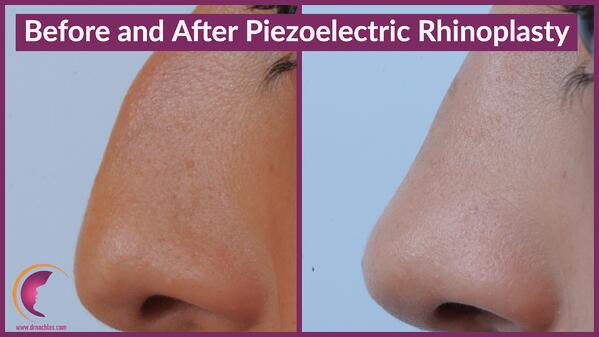 Patient photos from before and after piezoelectric rhinoplasty surgery by Dr. Nathan Nachlas in Boca Raton, FL